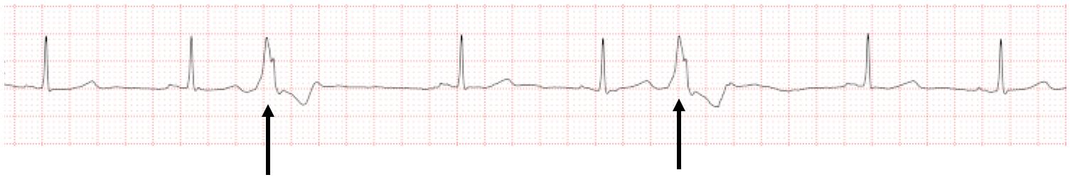 心室性期外収縮とは
